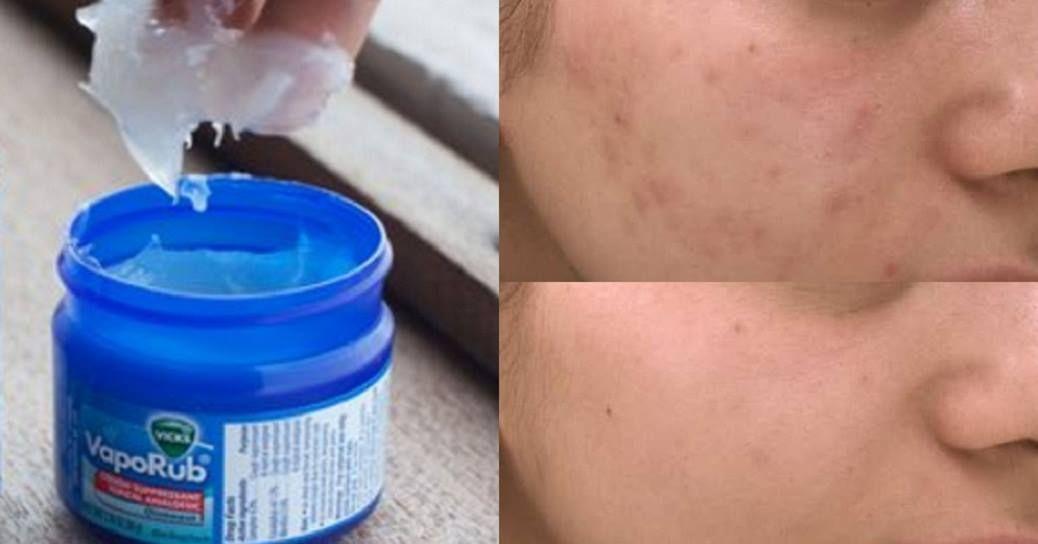 Stop Buy Expensive Acne Creams