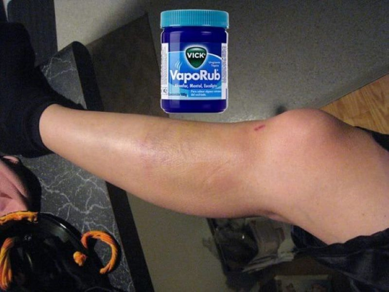 Use Vicks To Dissolve Bruises
