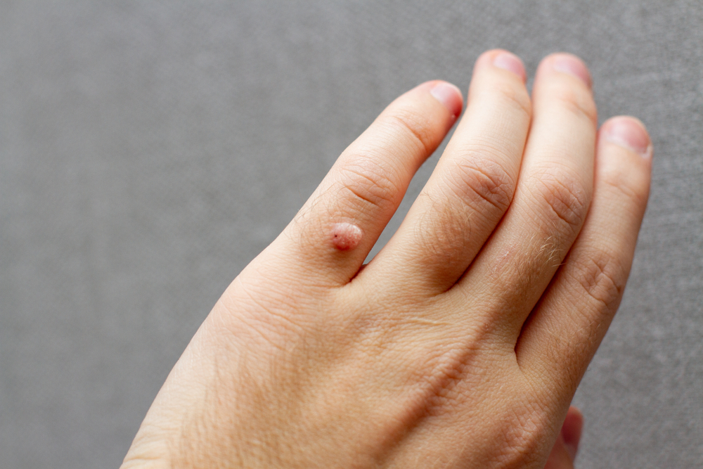 Get Rid Of Unsightly Warts