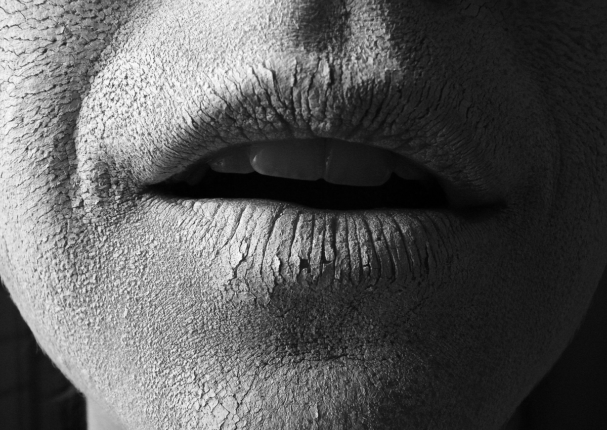 A black-and-white illustration shows a person's mouth cracked and dry.