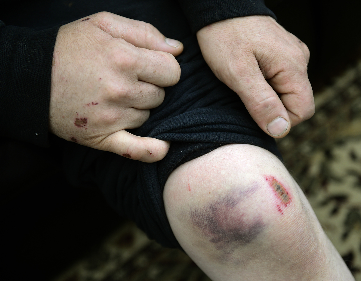 A man shows a bruise on his knee.