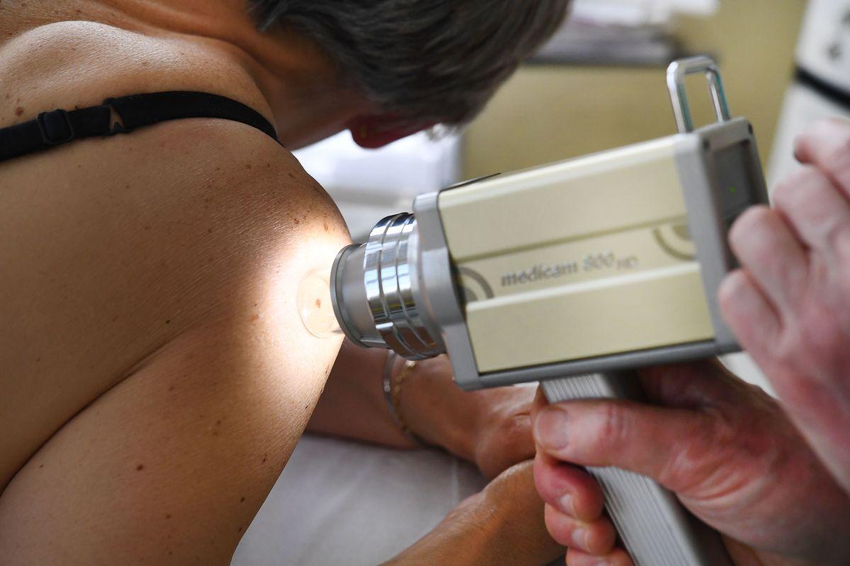 A dermatologist checks moles on a patient.