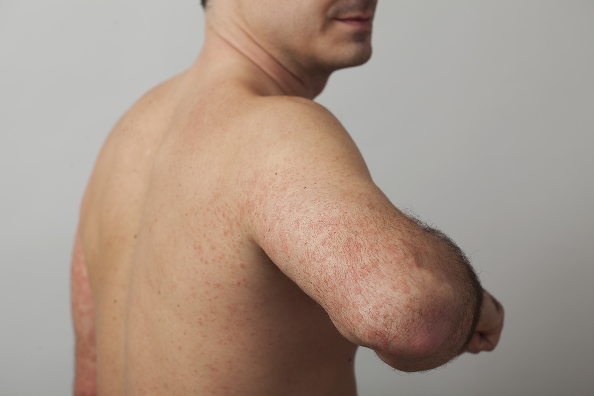 A man shows off hives on his arms.