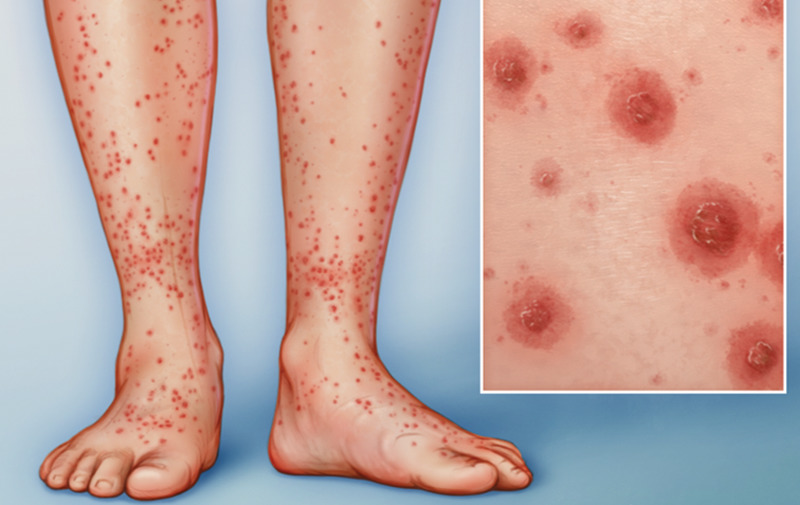 An illustration shows vasculitis of the legs.