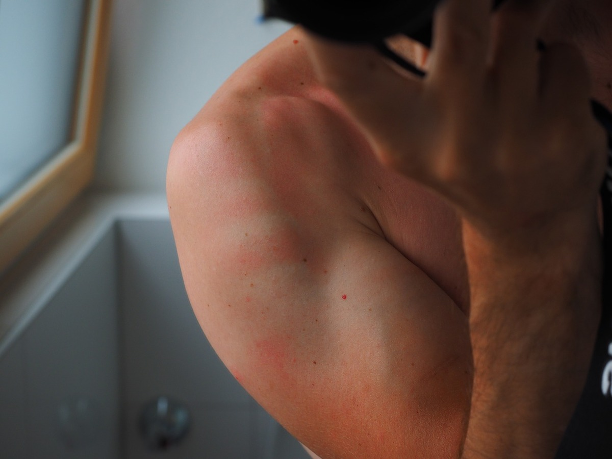 A light red rash appears on a person's arm.