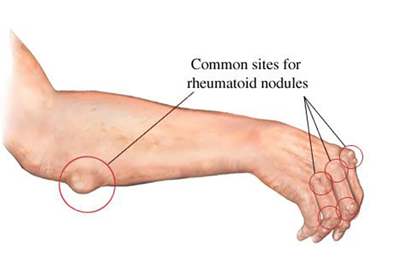 A diagram points out rheumatoid nodules, which are bumps on the fingers and elbow.