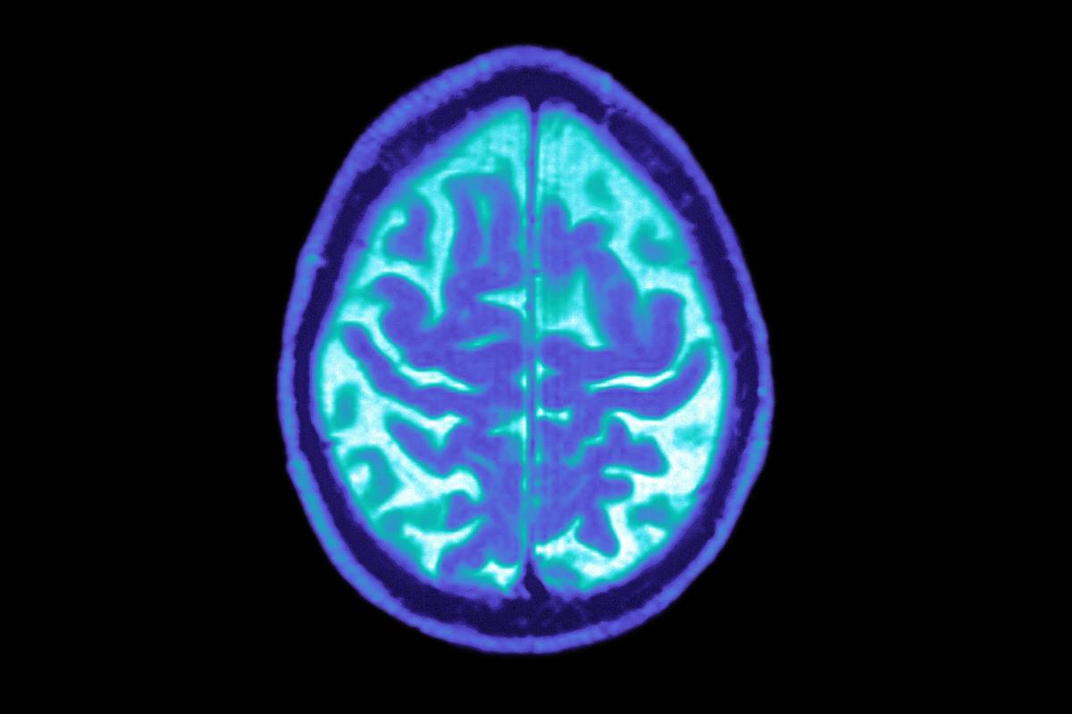 An MRI shows a brain with Alzheimer's.