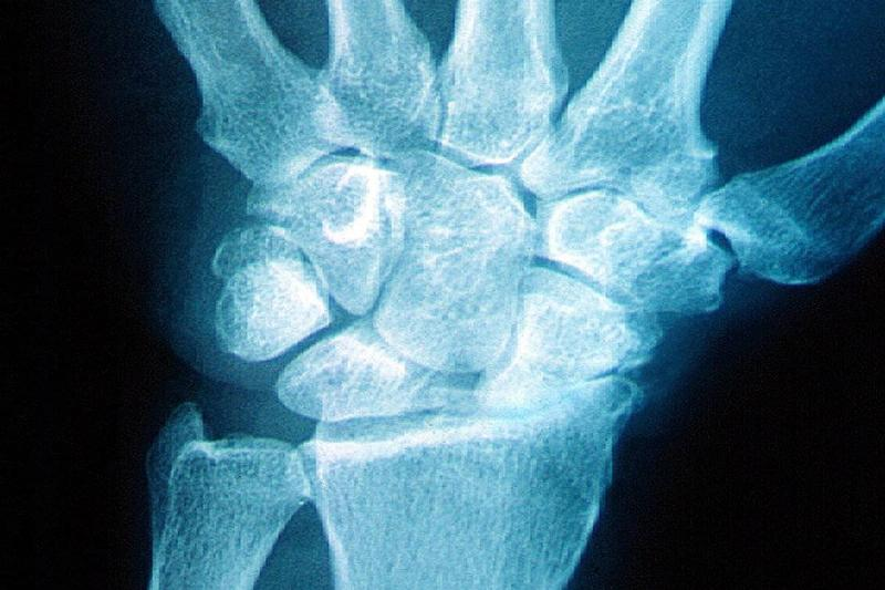 An X-ray shows arthritis of the wrist.
