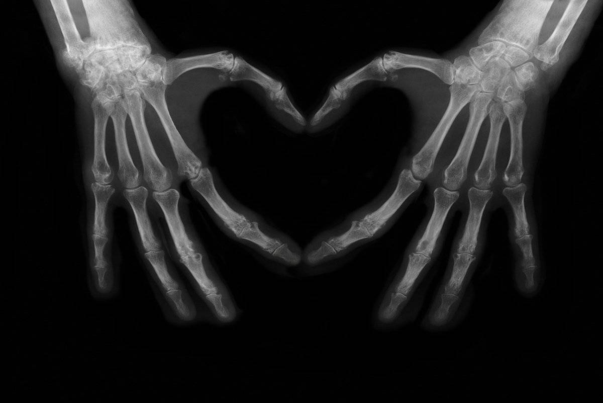 An X-ray of hands shows a heart.