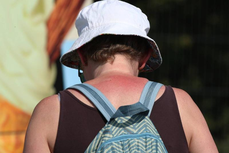 A woman with a sunburn on the back of her neck walks around outside.