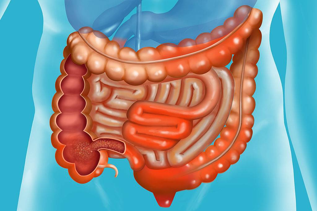 Crohn's Disease Is A Chronic Inflammation Of The Digestive Tube