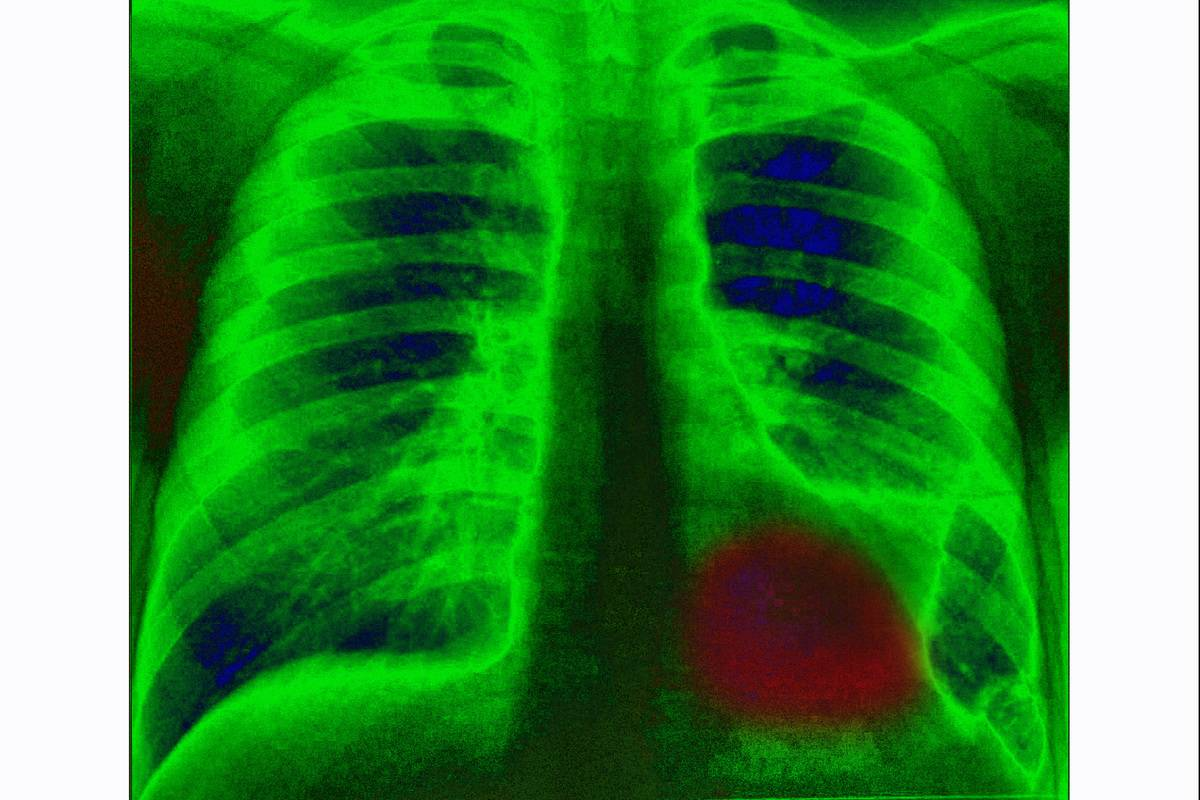 An x-ray shows the location of a tumor in the lung.