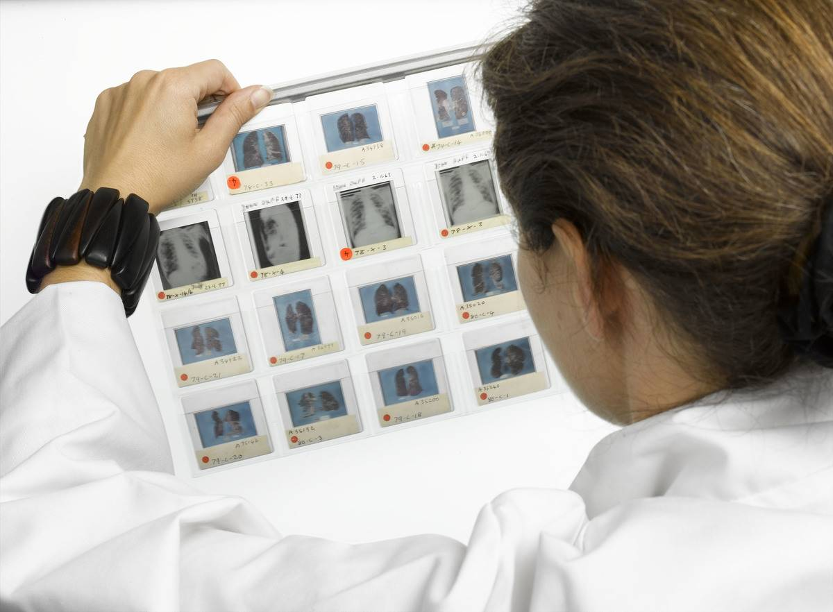 A pathologist scans pictures of lung disease.