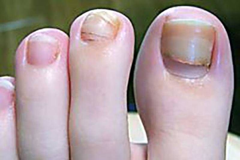 cancer-symptom-toenail-69797