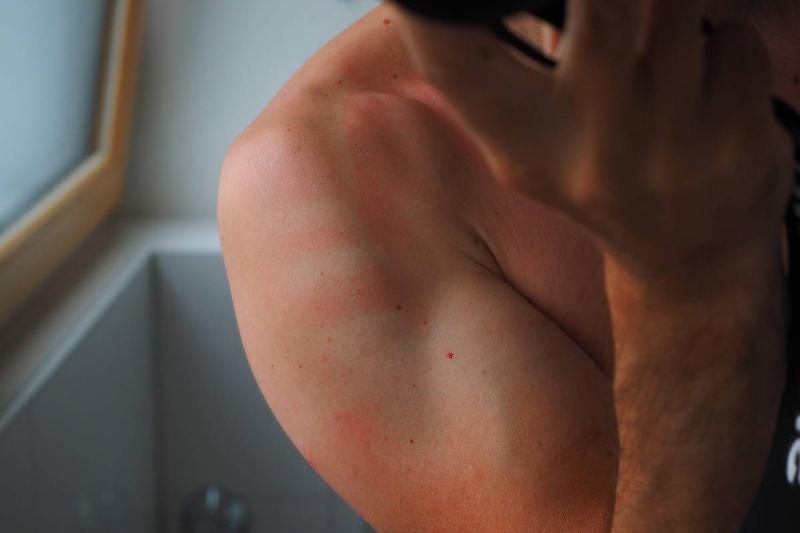 sunburn-2117350_1280-72592