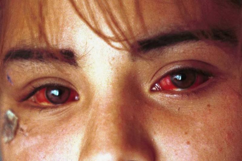 A woman has bloodshot eyes.