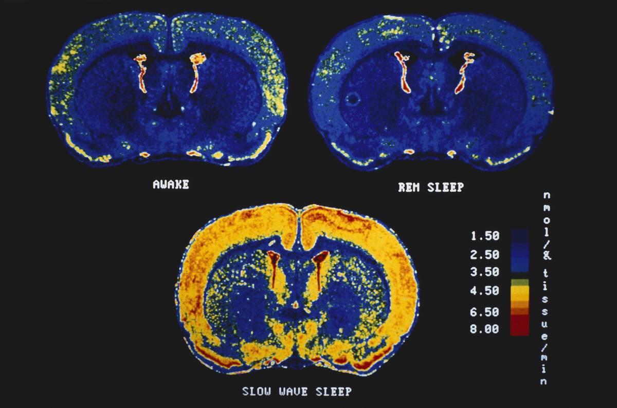 brain-during-REM