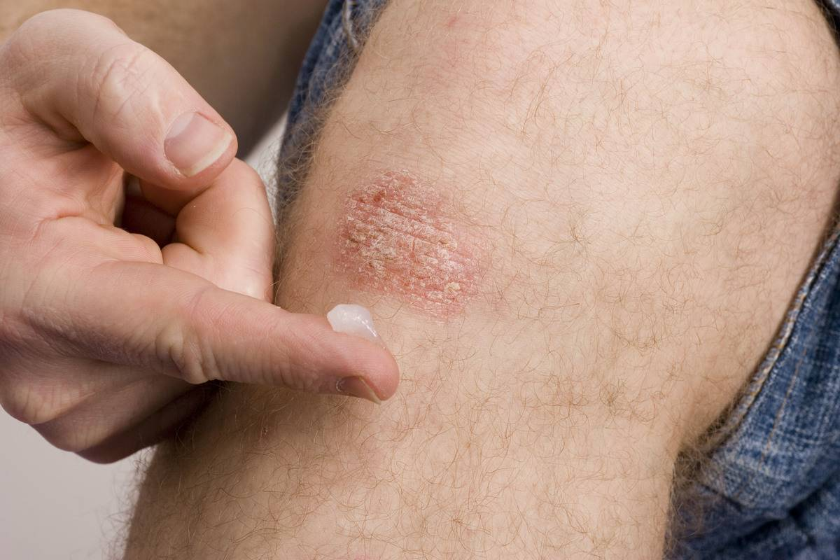 A man applies a medication ointment to psoriasis on his knee.