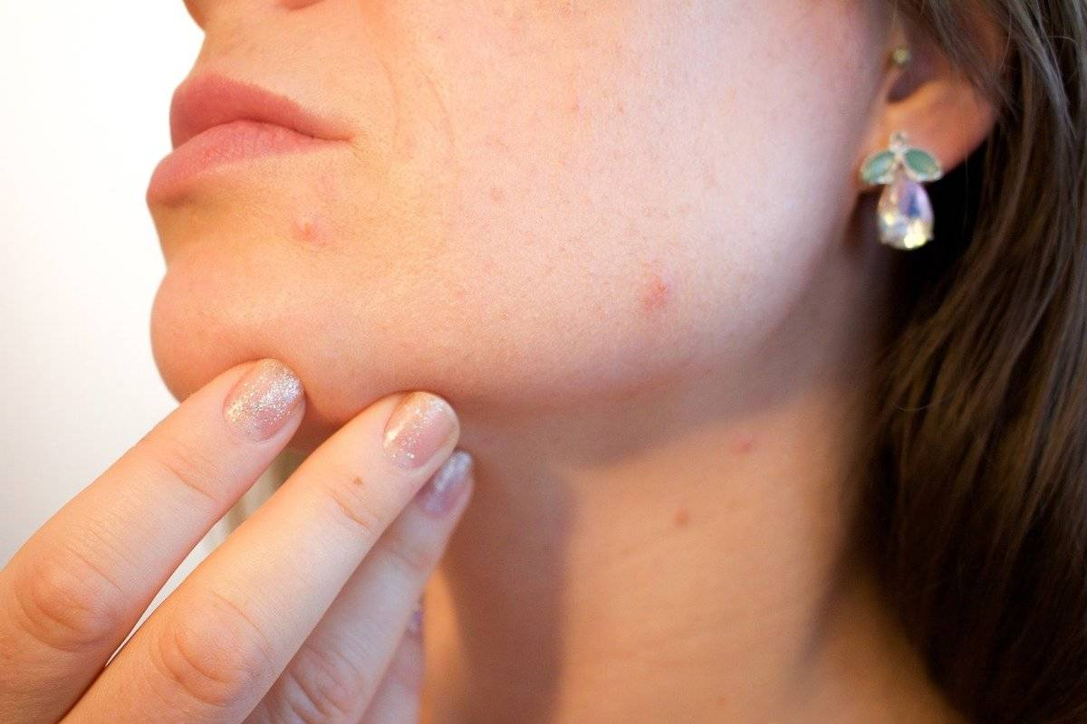 A woman holds her chin as she examines a few pimples on her face.