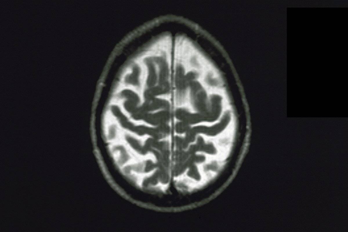 An MRI shows a brain with Alzheimer's.
