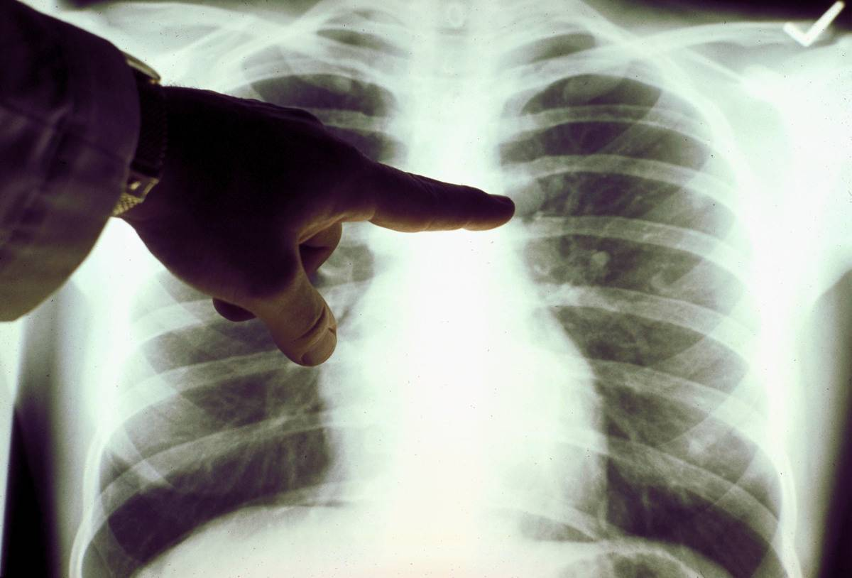 A doctor points to an x-ray of lungs.