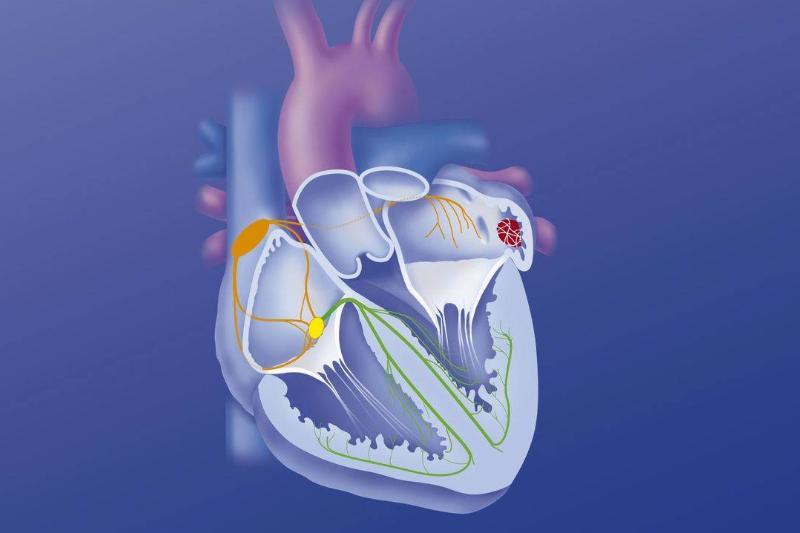A blue diagram shows a heart arrhythmia.