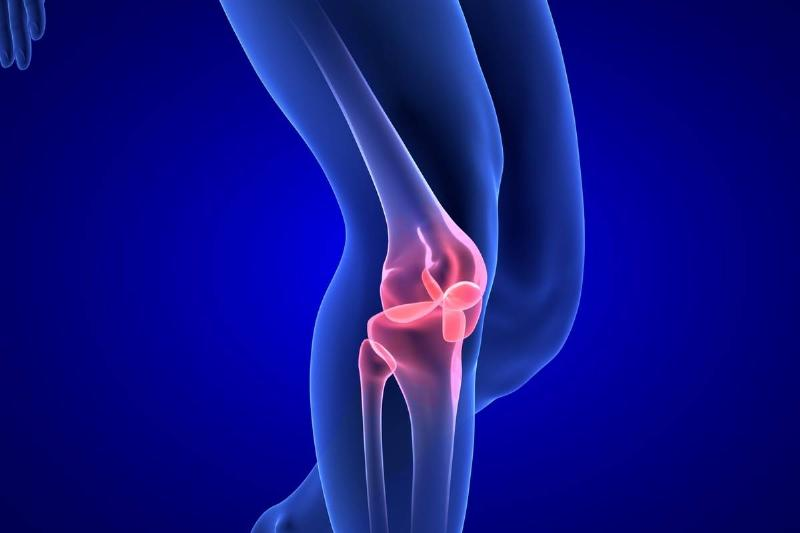A 3D model portrays joint pain in the knee.