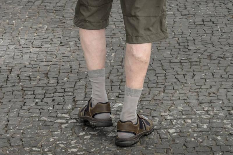 A man's legs have varicose veins.