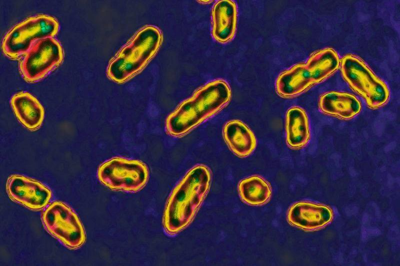 The bacteria Yersinia pestis is seen through a microscope.